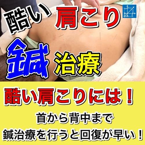 酷い肩こりの解消は鍼治療で筋肉を緩めるブログ.jpg