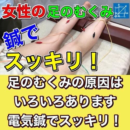 足のむくみ即効解消鍼治療ブログ.jpg