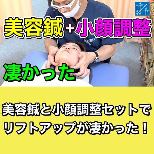 美容鍼東京安い小顔矯正リフトアップ凄い.jpg