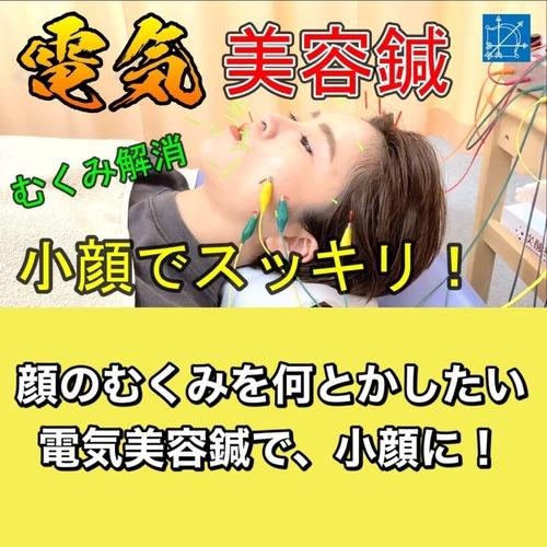 電気美容鍼でむくみたるみ解消で小顔東京安いブログ.jpg