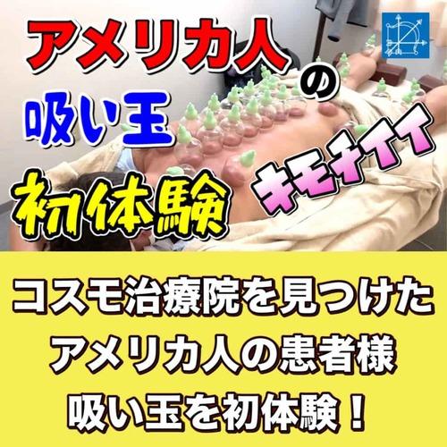 吸い玉東京アメリカ人のカッピング初体験ブログ.jpg