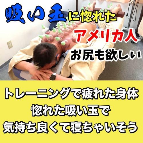 吸い玉東京アメリカ人の肩と腰の筋膜リリースブログ.jpg