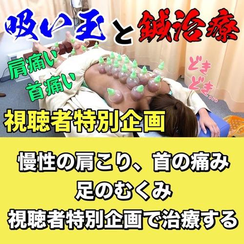 吸い玉鍼灸肩こり首こり頭痛が痛いブログ.jpg