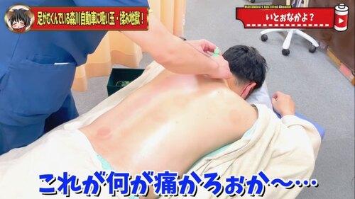 恵比寿鍼灸吸い玉はコスモ治療院.jpg