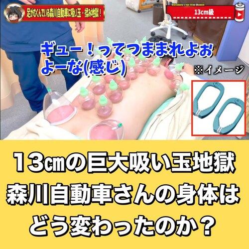 恵比寿鍼灸吸い玉東京で人気ブログ.jpg
