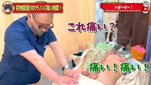恵比寿鍼灸吸い玉10.jpg