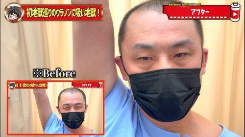 恵比寿鍼灸吸い玉42.jpg