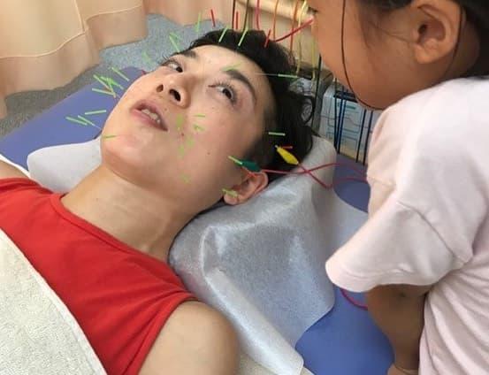 渋谷区恵比寿,鍼灸,整体,ママも美容鍼.jpg